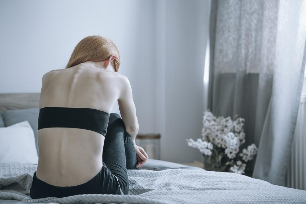 La anorexia nerviosa es una enfermedad grave que puede ser potencialmente mortal.
