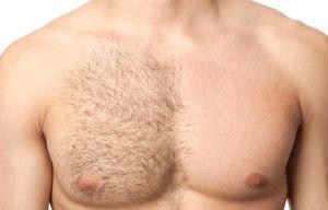 Depilación definitiva masculina: Métodos más recomendables para ellos