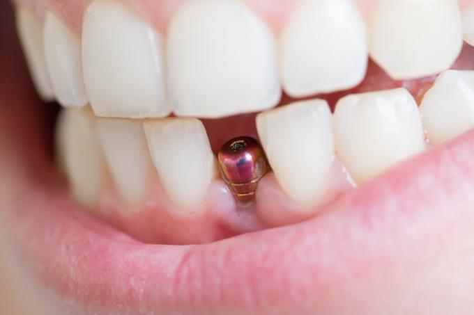 ¿Cuál es la mejor forma de recuperarme luego de un implante bucal?