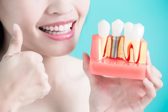 ¿En qué casos se recomiendan los implantes de carga inmediata en los dientes?