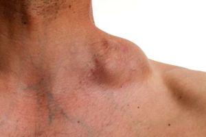 ¿Cuáles son los síntomas del cáncer de linfoma Hodgkin y por qué se produce?