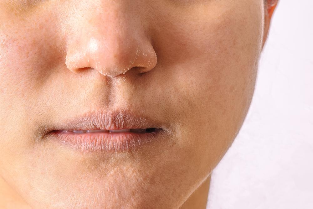 4 vitaminas para renovar la piel seca y desnutrida - La Opinión