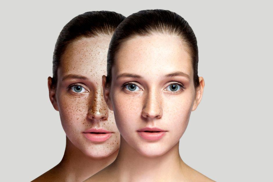 tratamiento para quitar las manchas del rostro