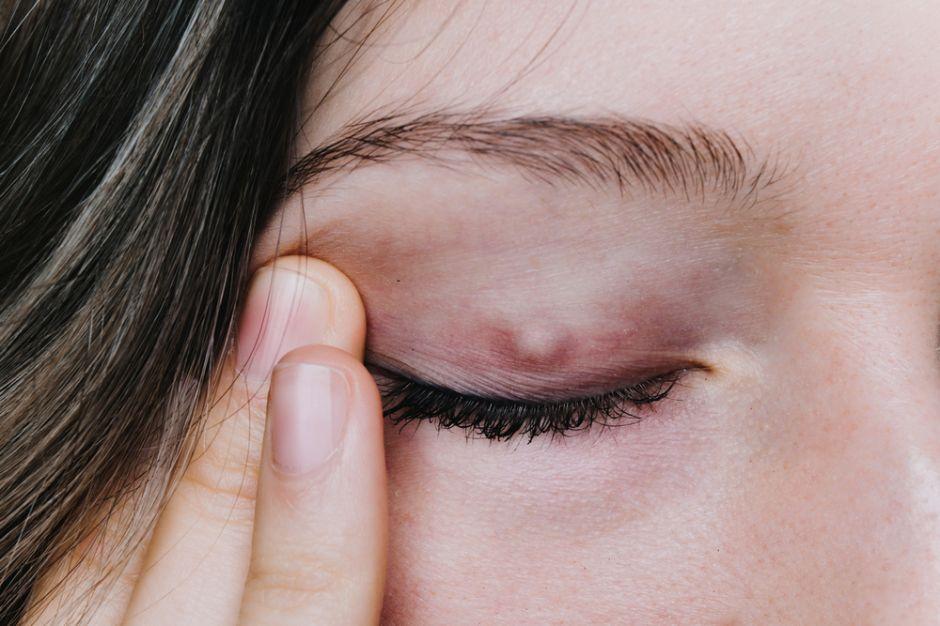 medicina para los orzuelos en los ojos