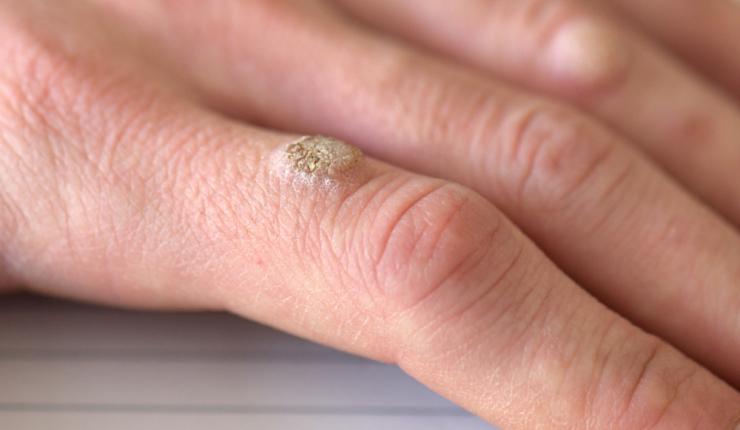 ¿Cuáles son las causas de las verrugas y cómo podemos prevenirlas?