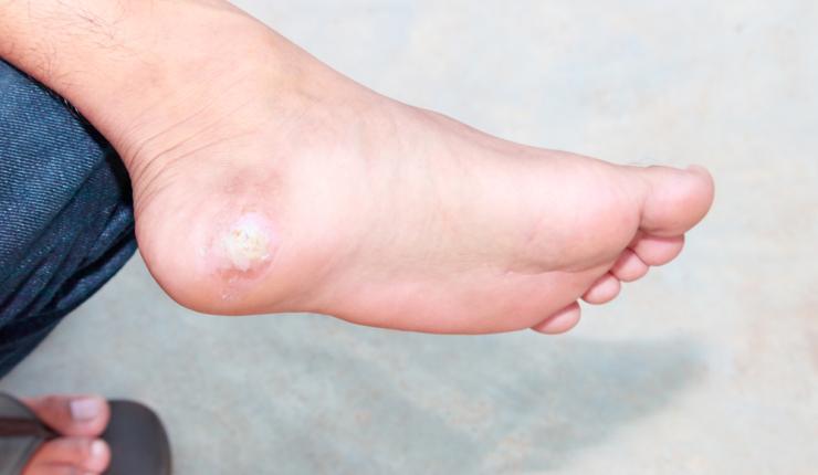 verrugas en los pies