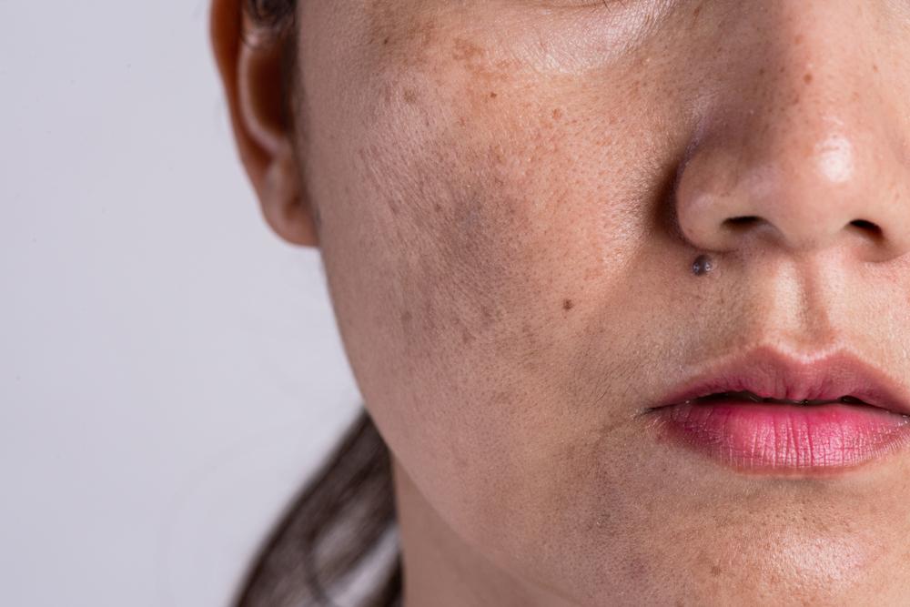 forma natural de quitar manchas en la piel