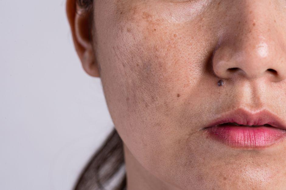 como eliminar las manchas en la cara por la edad