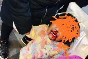 Mujer golpea a su bebita de 2 años y le rompe la nariz en pleno Metro en Ciudad de México