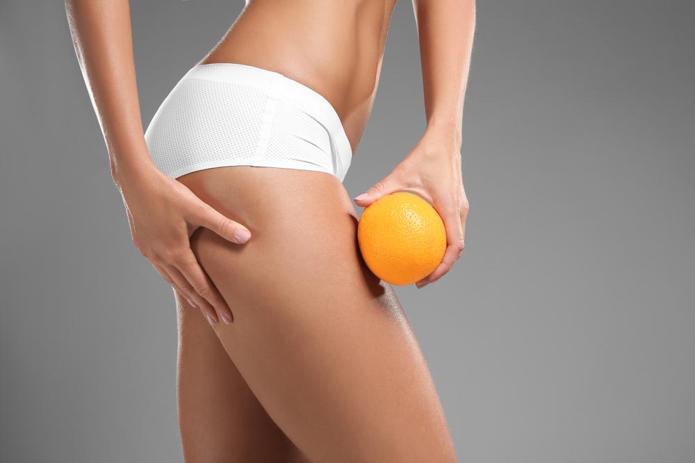 Los 5 mejores productos para eliminar la celulitis de tus piernas al bajar de peso