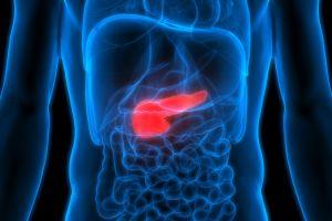 """Cáncer de páncreas: la combinación de 2 fármacos que """"mata de hambre"""" a las células cancerosas"""