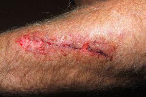 Albahaca, un asombroso remedio cicatrizante de heridas