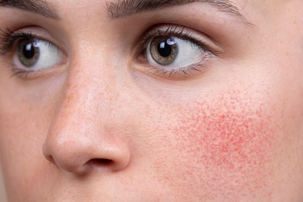 5 cremas naturales para tratar la irritación y el enrojecimiento de la piel