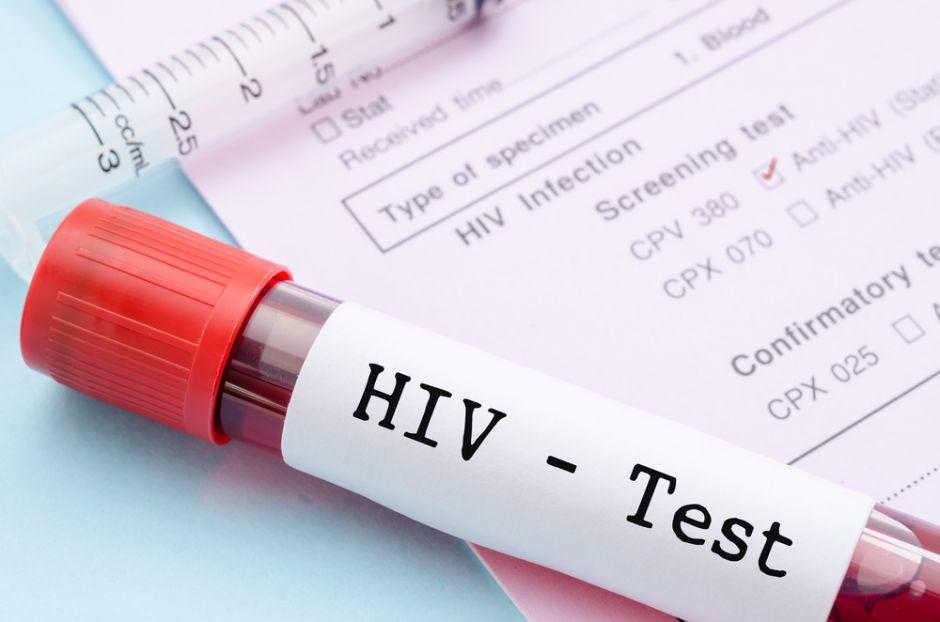 Encuentran un nuevo subtipo del VIH