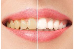 ¿Cómo evitar manchar tus dientes por tomar café?