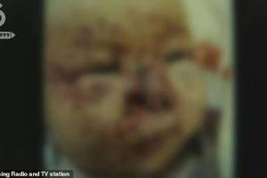 Ratones desfiguraron la cara de una bebé de 3 meses