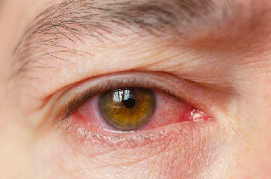 como limpiar los ojos cuando se tiene conjuntivitis