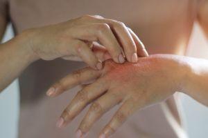 Dermatilomanía, el trastorno que hace que tengas que rascarte continuamente