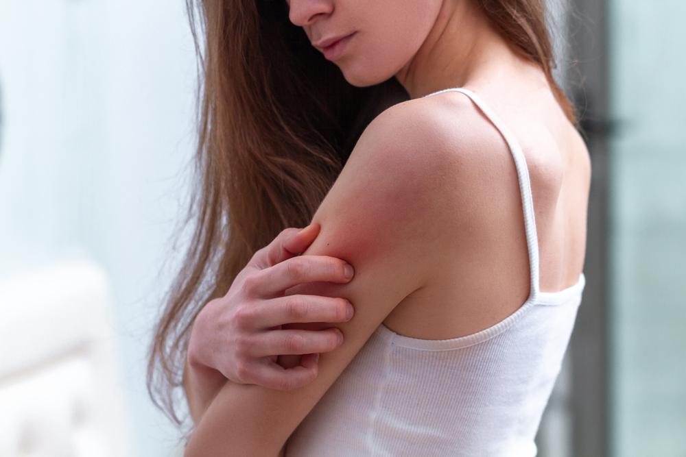 4 productos para calmar las irritaciones en la piel