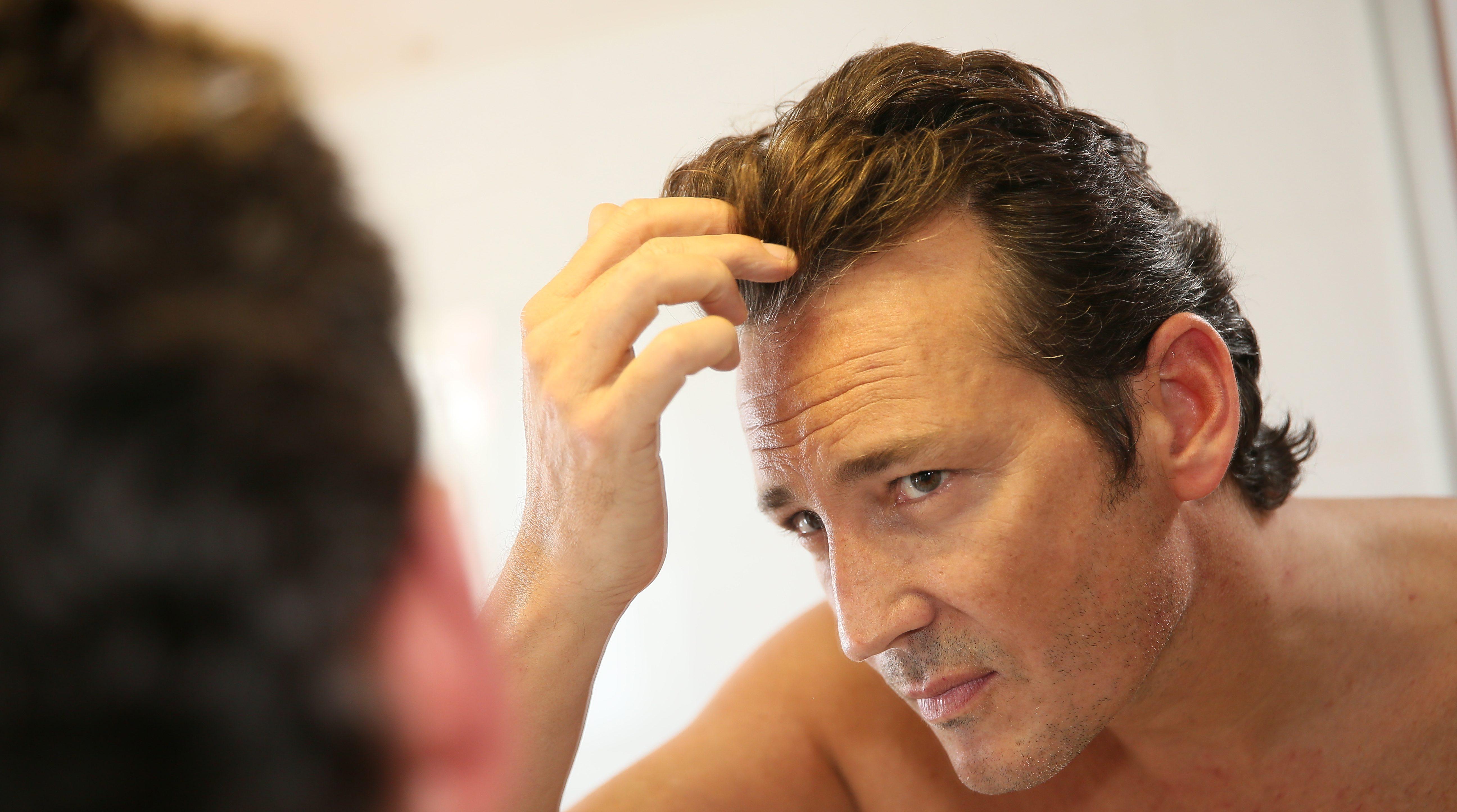 Productos para tratar la caída del cabello en hombres.