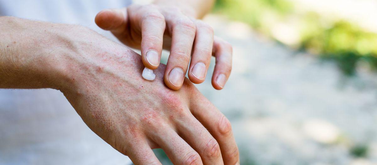 Las 6 mejores cremas para tratar la psoriasis