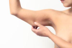 ¿Qué debemos considerar antes de realizarnos un lifting de los brazos?
