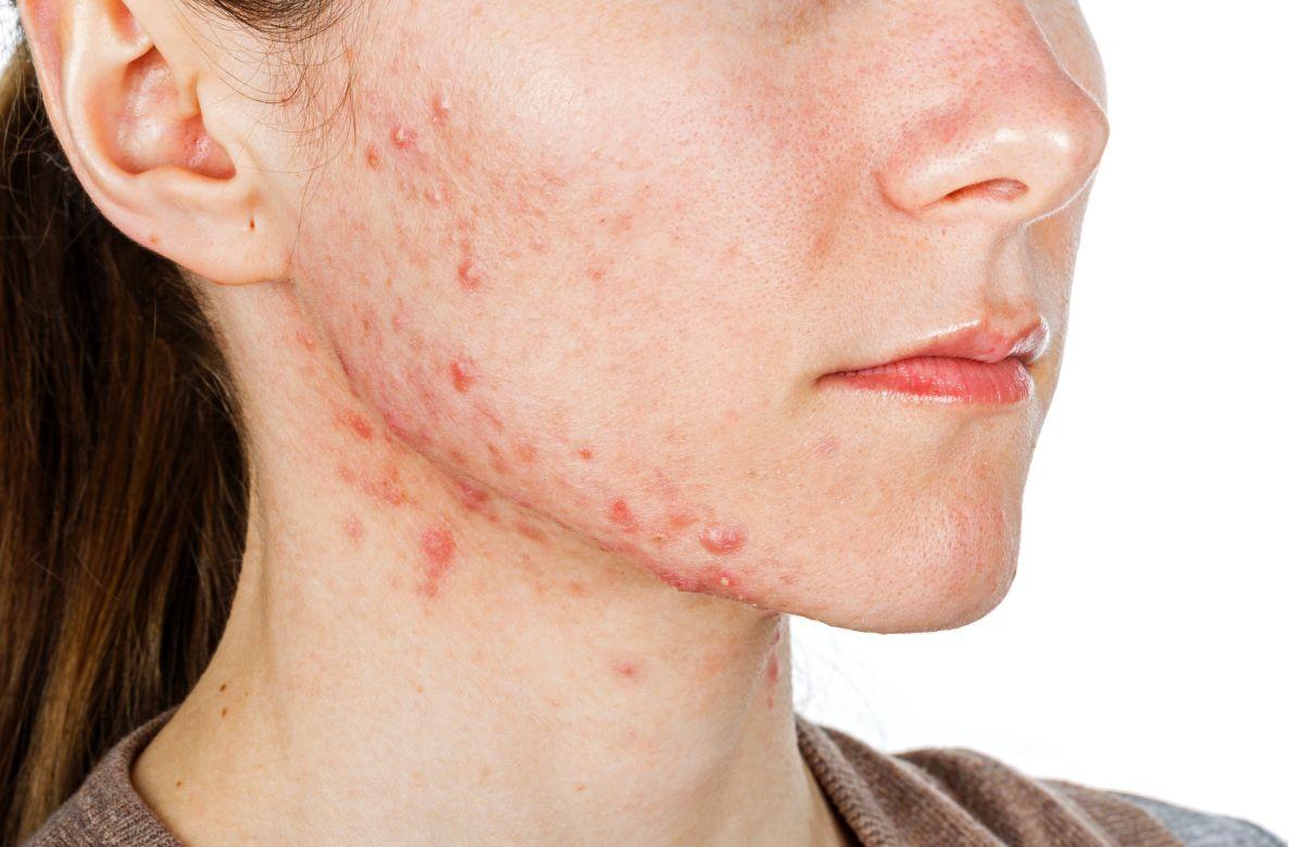 Estas son las 9 enfermedades más comunes de la piel