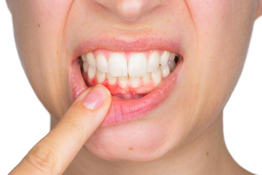 ¿Qué es la gingivitis y cuáles son los 3 mejores enjuagues bucales para aliviarla?