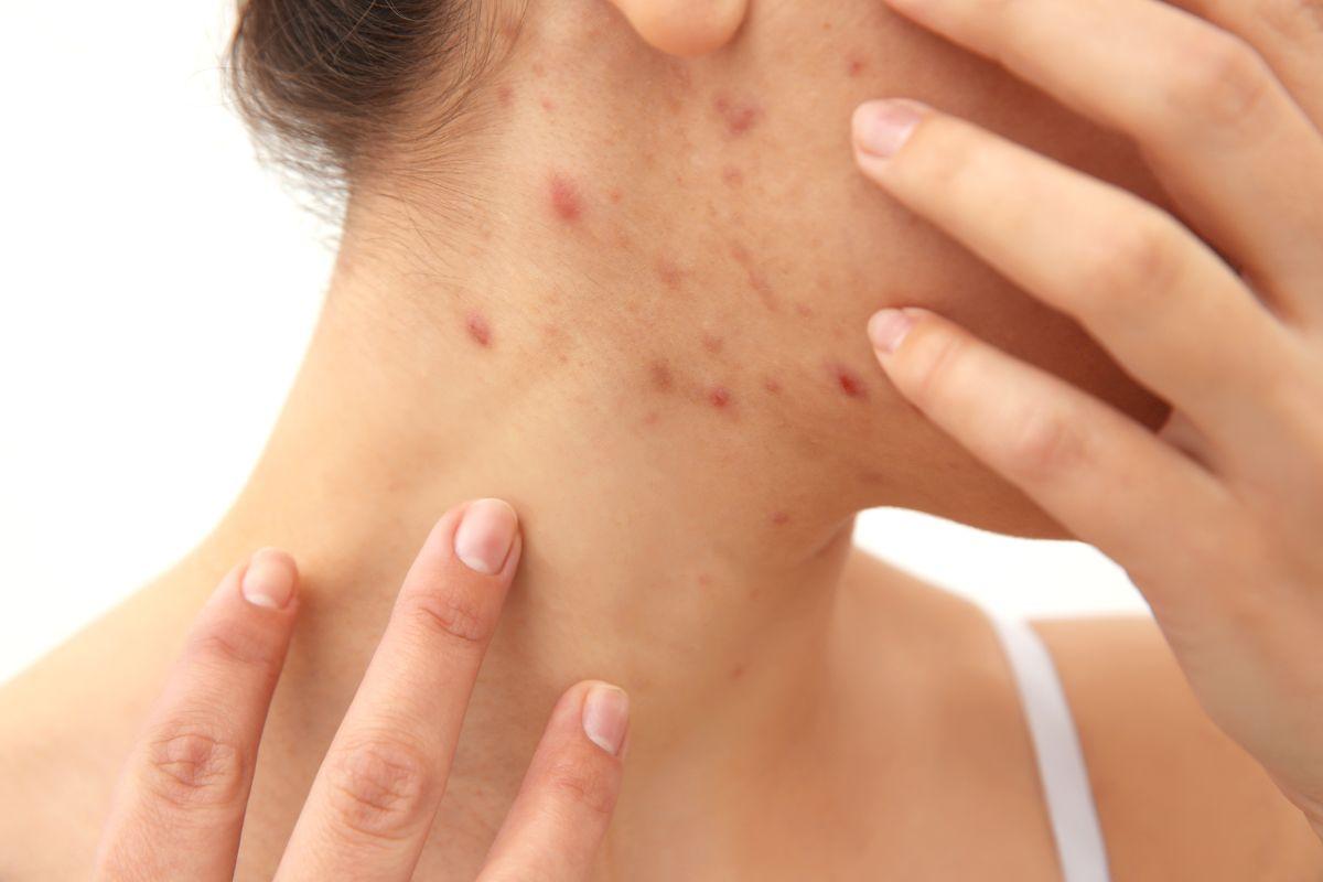 Los 5 mejores productos para eliminar y evitar el acné de tu rostro