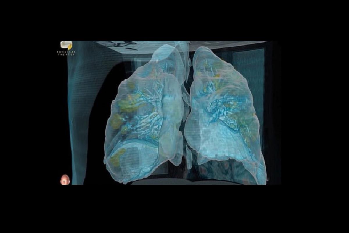 Así se aprecian los pulmones en el video.