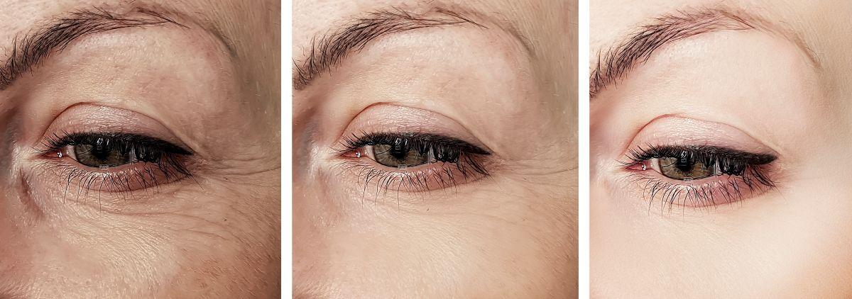 Esconde las líneas finas de la piel con estos 3 rellenos de arrugas suaves