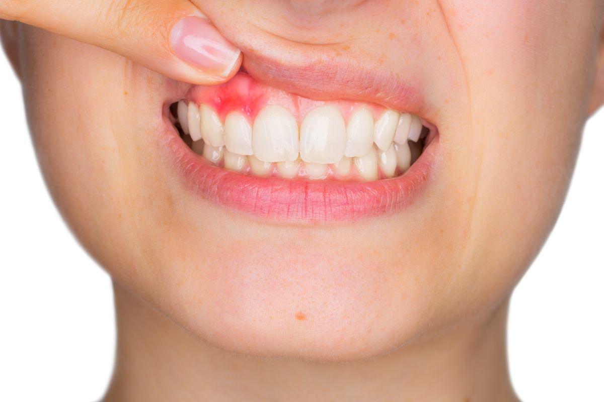 5 productos diseñados para combatir la gingivitis