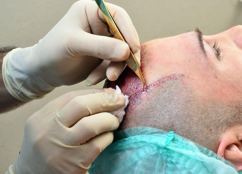 Todo lo que debes considerar antes de realizarte un implante de cabello