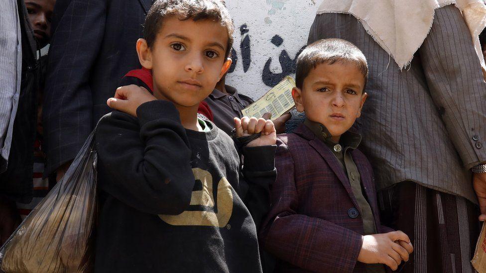 Millones de niños en Yemen sufren de escasez de comida.