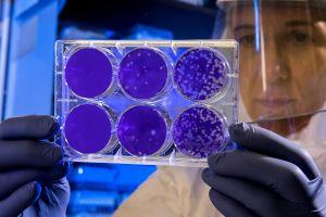 Medicamento experimental contra el cáncer podría detener la infección por coronavirus