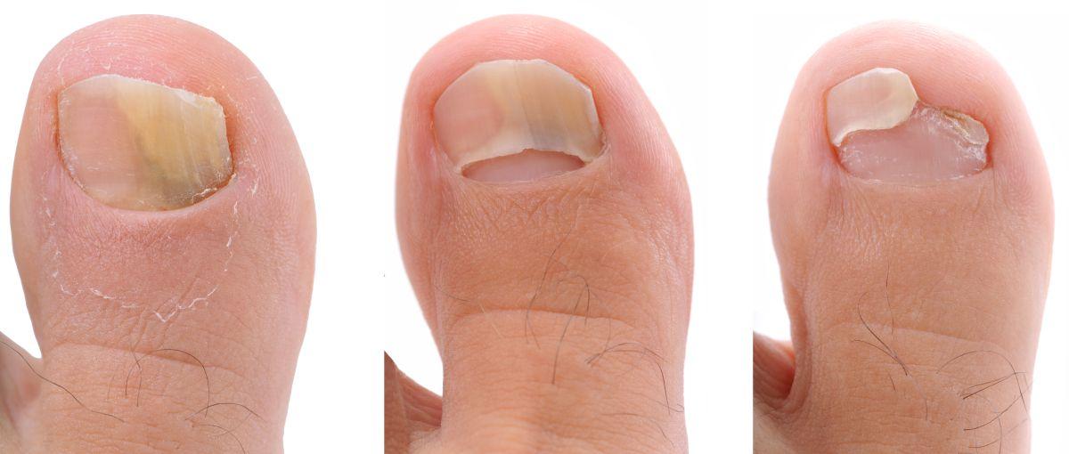 3 tratamientos para curarte si sufres de hongos en las uñas y pies