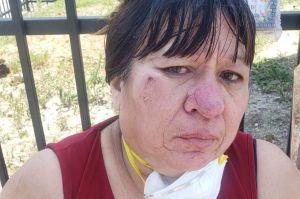 Esta mujer hispana y su hija fueron violentamente atacadas cuando vendían arreglos florales para el Día de las Madres