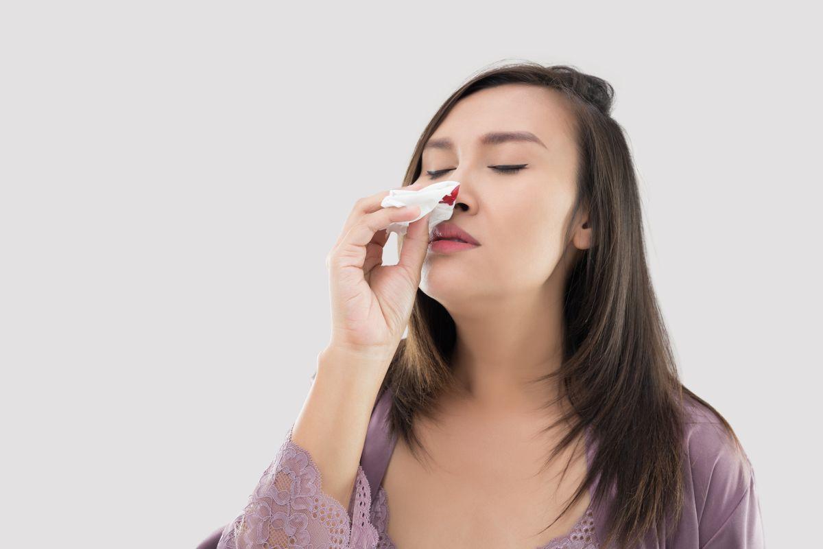 ¿Qué causa el sangrado de nariz frecuente?