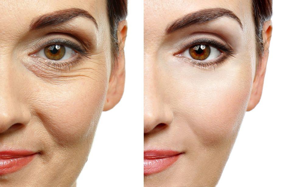 Aprovecha la cuarentena para quitarte unos años de encima usando estas cremas antiarrugas