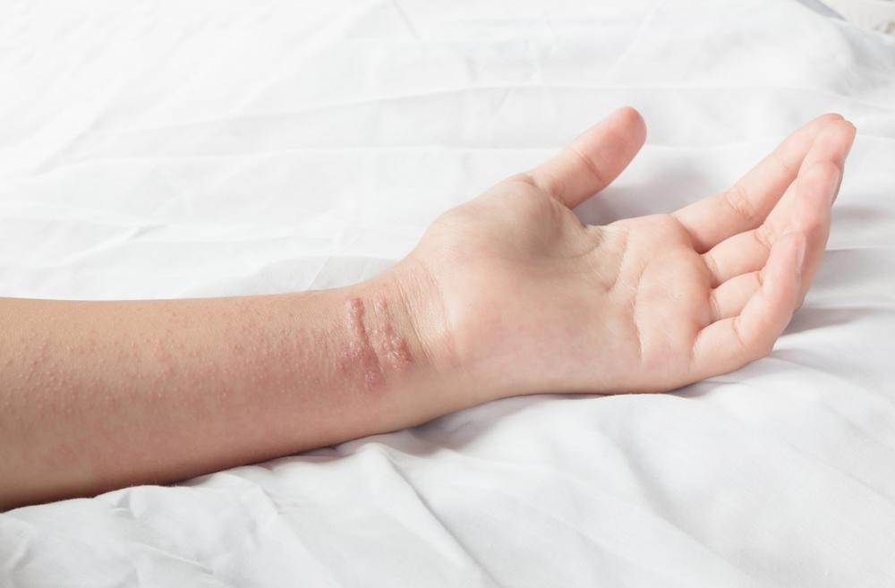 ¿Cómo eliminar el sarpullido causado por la hiedra venenosa?