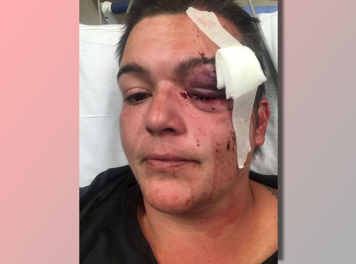 """La fotógrafa latina que perdió un ojo en las protestas por George Floyd: """"La violencia es sistémica"""""""