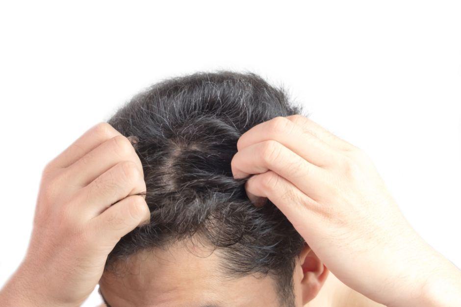 Aceite de romero: previene las canas, la caspa y fortalece el cabello