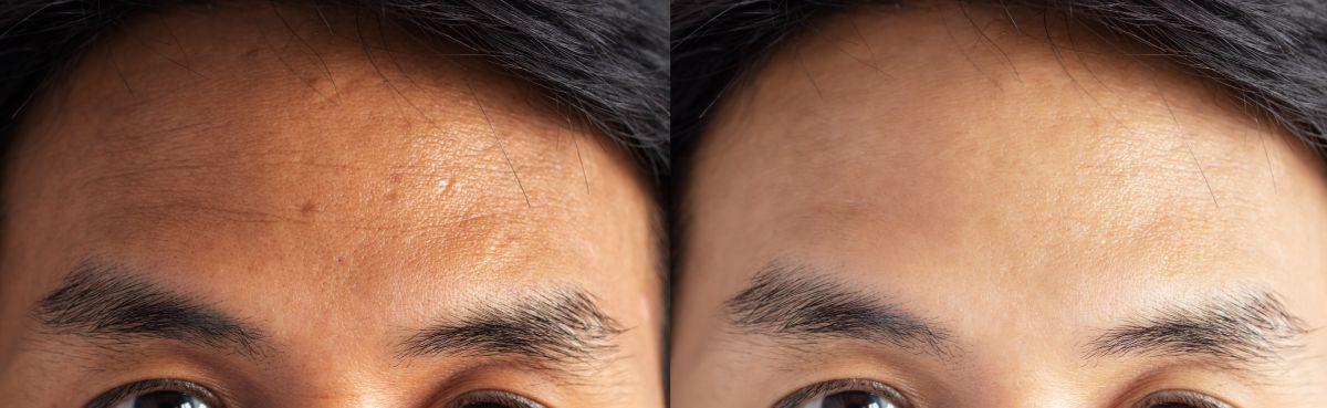 ¿Cómo blanquear la piel y emparejar el tono?
