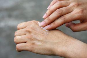 ¿Cómo funciona la cebolla para eliminar cicatrices?