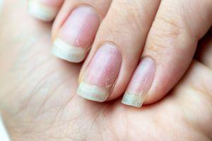 12 secretos que tus uñas dicen sobre tu salud
