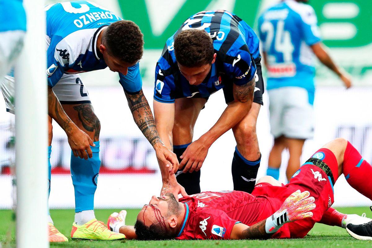 David Ospina tuvo que salir de cambio al minuto 28 del partido.