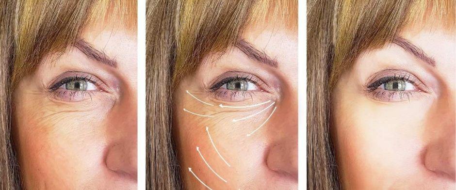 Los 5 mejores productos con colágeno para disminuir significativamente las arrugas de tu rostro