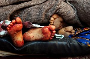 FOTOS: Cuerpos de 16 sicarios del Cártel del Noreste lucen así en la morgue, fosa común los espera