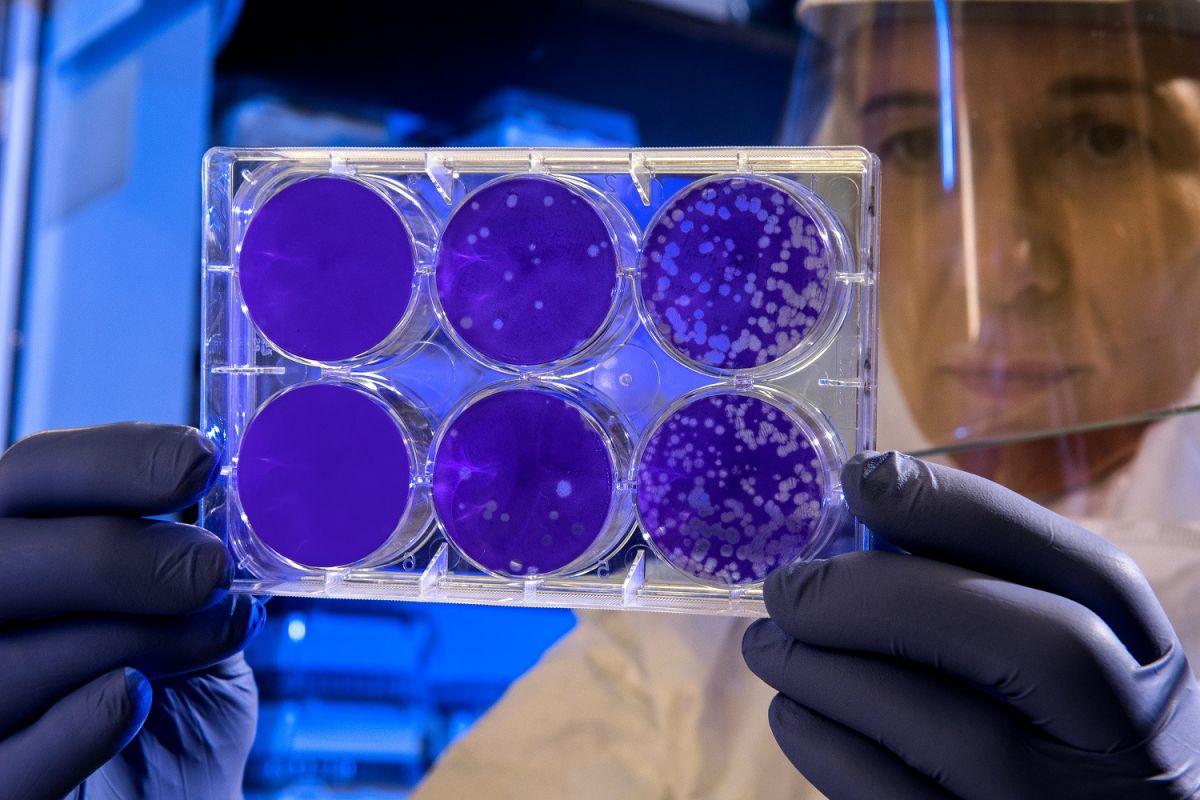 5 datos que debes saber sobre la vacuna contra el coronavirus de AstraZeneca-Oxford que ha logrado resultados positivos