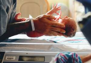 Nace bebé con el cordón umbilical enrollado al cuello 6 veces y aún así sobrevive